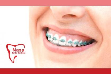 ¡Corrige tu Sonrisa! Paga RD$3,950 en vez de RD$28,000 por Evaluación Dental + Colocación de Ortodoncia (Brackets) Superior e Inferior + Limpieza Dental con Ultrasonido + Aplicación de Flúor + Instrucciones de Higiene Oral + 30% de descuento en tratamientos adicionales en Nasa Dental Solutions.