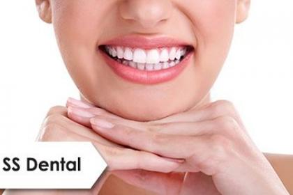 ¡Deslumbra con tu Sonrisa! Paga RD$4,495 en vez de RD$38,000 por Consulta + Diagnóstico especializado + Destartraje + Pulido +  Aclaramiento con Profijet + 1 Caries simple + Ortodoncia arriba y abajo + 40% de descuento en otros procedimientos en SS Dental.
