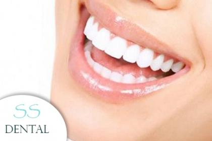 ¡Dile no a la caries dental! Paga RD$1,500 en vez de RD$7,500 por Una consulta + Destartraje con ultrasonido + La restauración de 5 Caries Clase I + Un 50% de descuento en los demás tratamientos dentales en SS Dental con la Dra. Keyla Olivero.