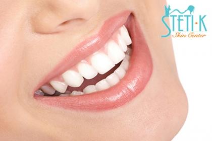 ¡Dale a tu boca el cuidado que se merece! Paga RD$350 en vez de RD$17,000 por Diagnóstico, Profilaxis ultrasónica, Aplicación de flúor, Instrucciones de Higiene Oral, Una caries y un 50% en otros procedimientos odontológicos en Stetik Center.