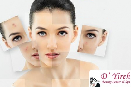 ¡Tratamiento Anti-Acné! Paga RD$995 en vez de RD$15,500 por Tratamiento Completo Anti-Acné en D�Yireih Beauty Center & Spa.