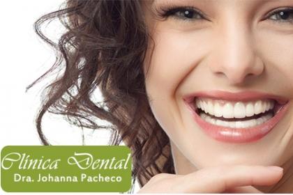 ¡Luce una Sonrisa Perfecta! Aprovecha y Paga  RD$3,200 en vez de RD$35,000 por Consulta + Diagnóstico + Profilaxis + 2 Sesiones de Flúor + Pulido con Piedra Pómez + Brackets de Níquel Titanio arriba y abajo + Retenedor en inferior + Instrucciones de Higiene Oral + 40% de Descuento en servicios en la Clínica Dental Dra. Johanna Pacheco.