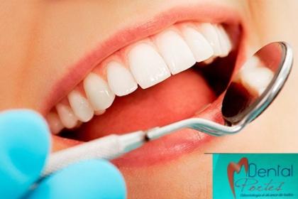 ¡Deslumbra con tu Sonrisa! Paga RD$3,600 en vez de RD$30,000 por Diagnostico + Plan de tratamiento + Limpieza dental profunda + Pulido con piedra pómez + Aplicación de flúor + Instalación de brackets + Modelo de estudio + Fotografía para récord + Introducción de higiene + 25 % de descuento en rehabilitación en Dental Portes.