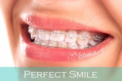 ¡Por motivo del mes de la sonrisa y nuestro aniversario! Paga RD$3,985 en vez de RD$27,000 por tu Instalación completa de Brakets arriba y abajo + 1 Limpieza para ti y un acompañante + 1 Kit de ortodoncia + 50% de descuento en otros procedimientos en Perfect Smile.