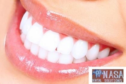 ¡Deslumbra con tu Sonrisa! Paga RD$225 en vez de RD$2,500 por Consulta + Evaluación + Destartraje + Profilaxis con ultrasonido + Aplicación de flúor + Pulido dental y un 20% de descuento en los demás procedimientos Nasa Dental Solutions.