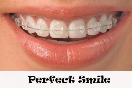 ¡Sonrisa Perfecta! Paga RD$5,895 en vez de RD$19,500 por Colocación de tus Bracket arriba y abajo de tu preferencia Porcelana o Metal + Kit Ortodontico + 40% de Descuento en otros procedimientos  en Perfect Smile.