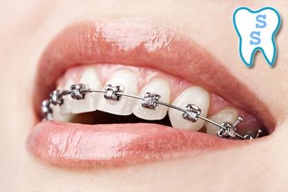 ¡Por una mejor sonrisa! Paga RD$2,995 en vez de RD$39,000 por Diagnostico Especializado + Consulta + Estudio Radiográfico + Colocación de Bracket Superior e Inferior + Destartraje con ultrasonido + Pulido + 1 Caries simple + 50% de descuento en los demás servicios odontológicos en SS Dental.